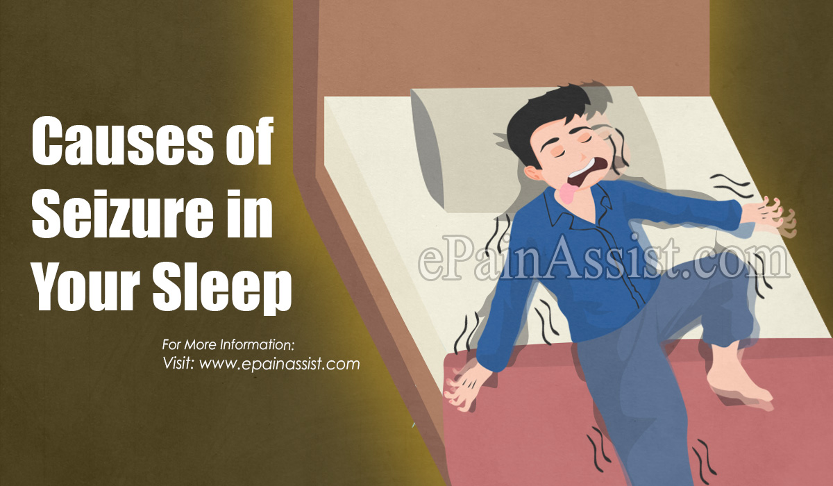 Causes of Seizure in Your Sleep