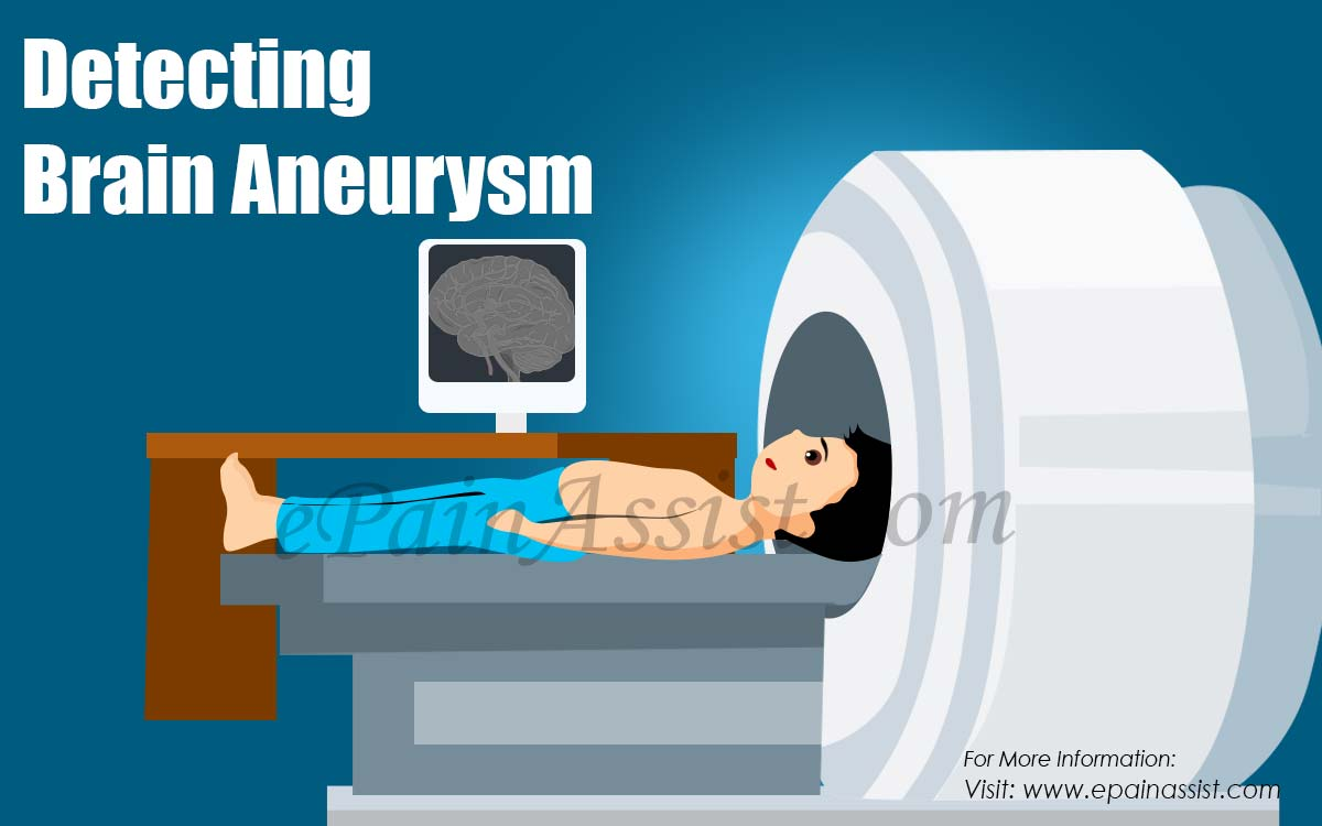 Detecting Brain Aneurysm