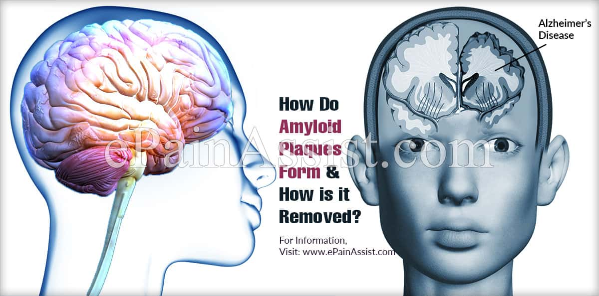 How Do Amyloid Plaques Form & How is it Removed?