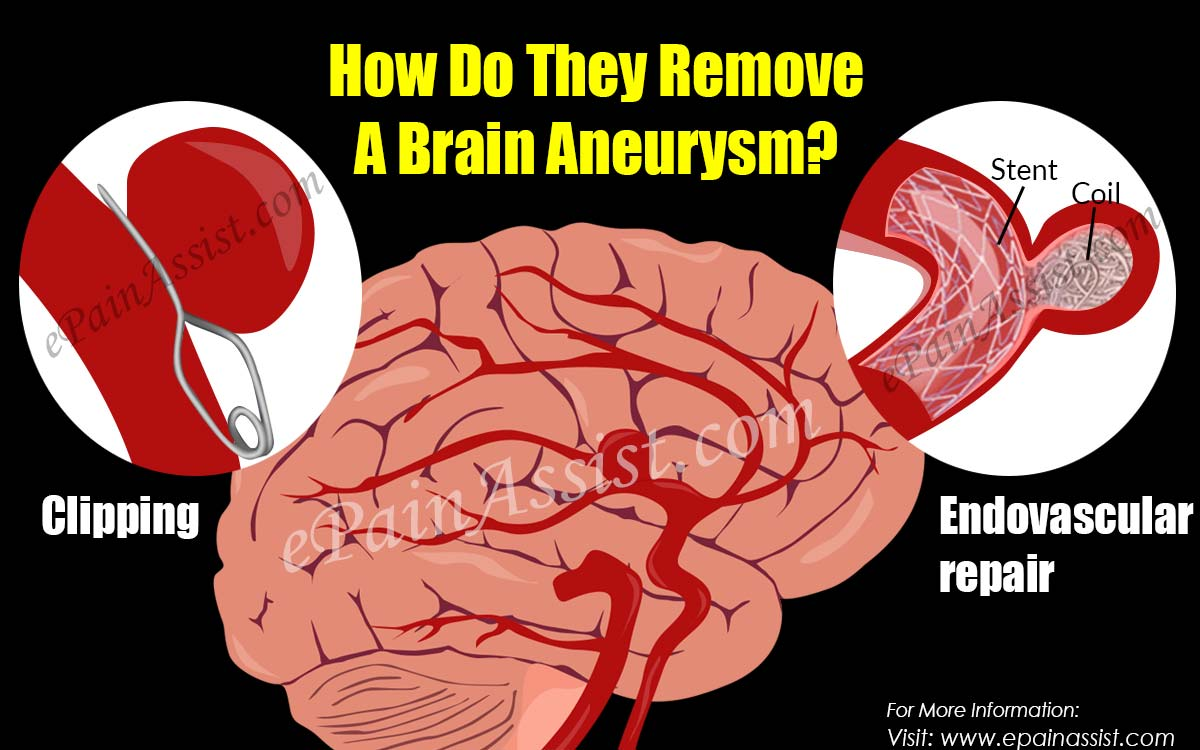 How Do They Remove A Brain Aneurysm?