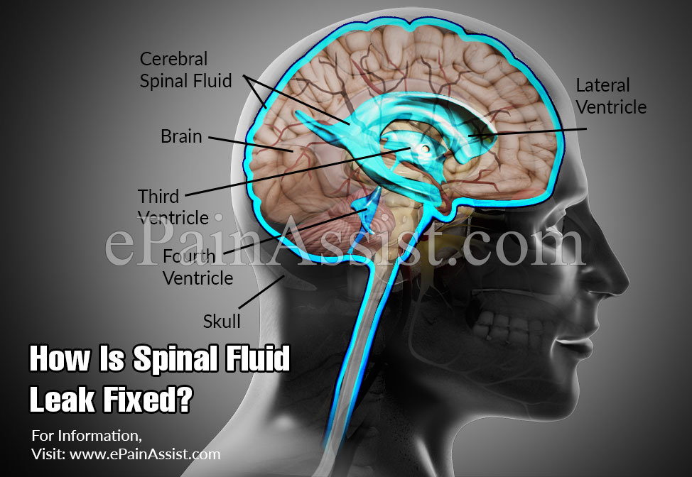 How Is Spinal Fluid Leak Fixed?