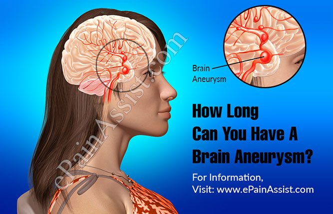 How Long Can You Have A Brain Aneurysm?