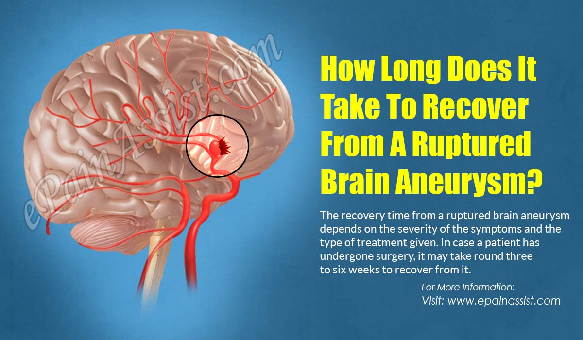 How Long Does It Take To Recover From A Ruptured Brain Aneurysm?