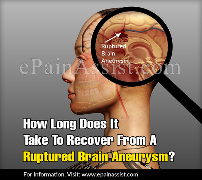 How Long Does It Take To Recover From A Brain Aneurysm Surgery?