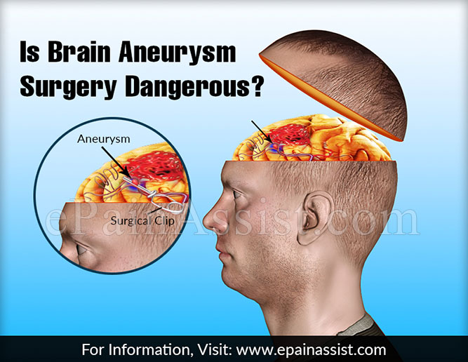 Is Brain Aneurysm Surgery Dangerous?