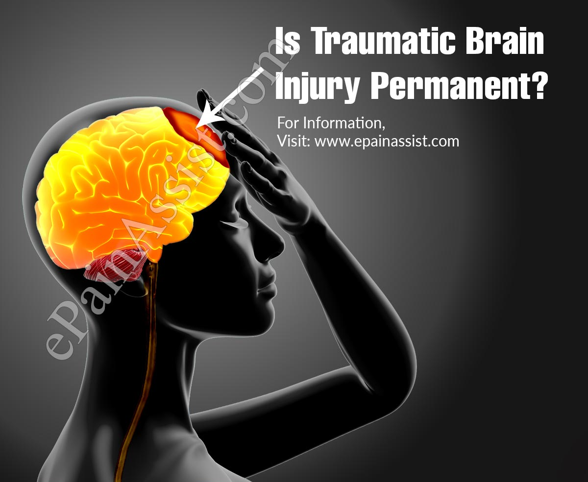 Is Traumatic Brain Injury Permanent?