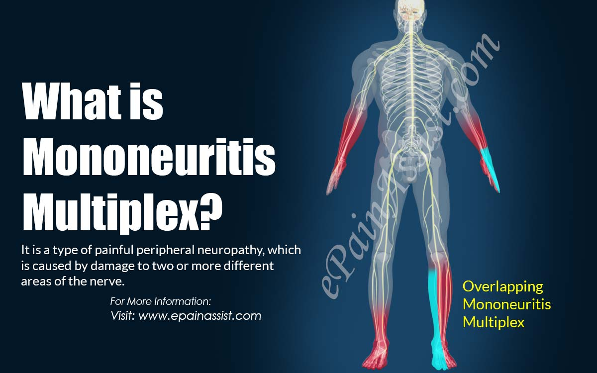 What is Mononeuritis Multiplex?