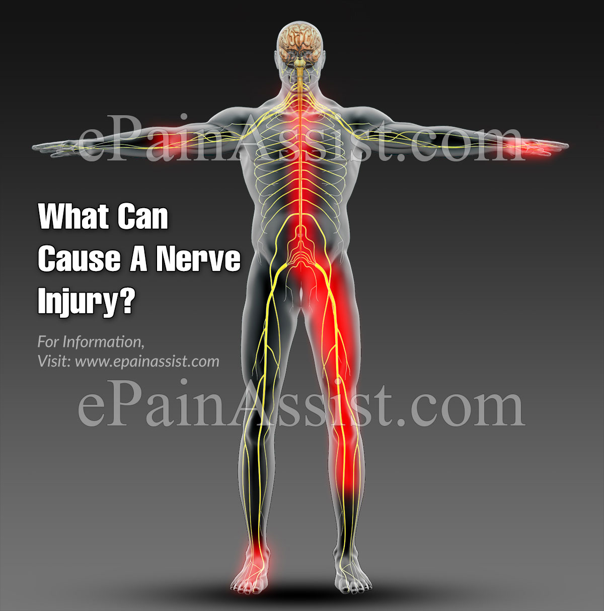 What Can Cause A Nerve Injury?
