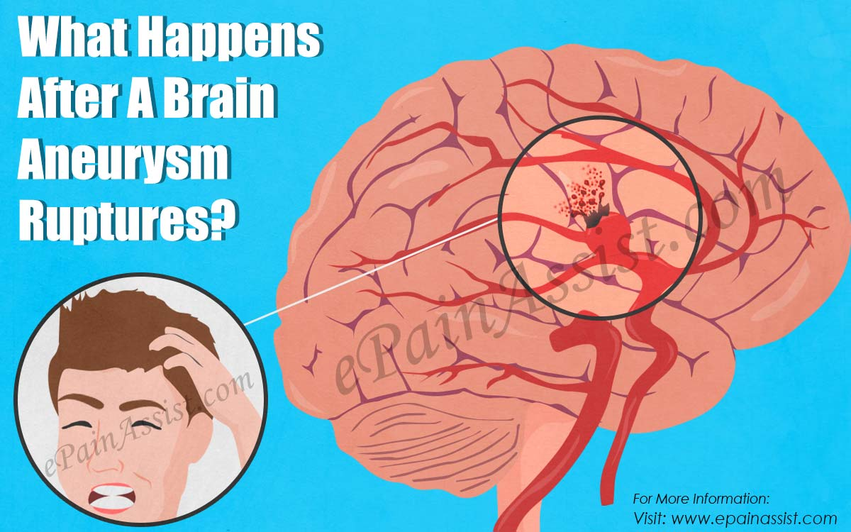 What Happens After A Brain Aneurysm Ruptures?