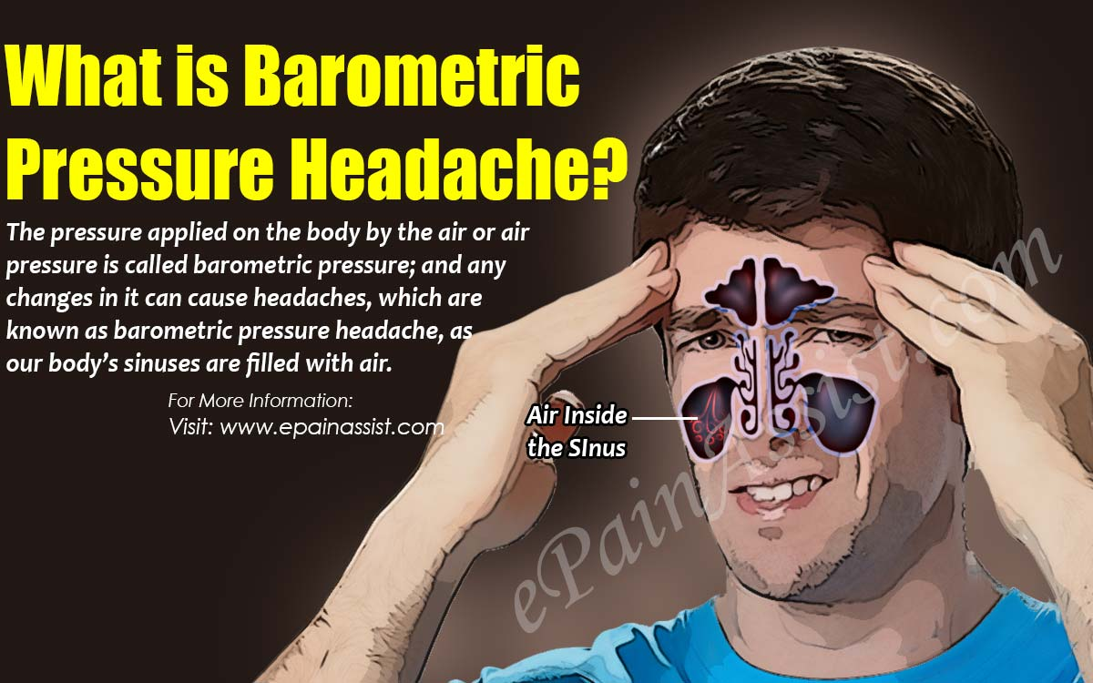 What is Barometric Pressure Headache?