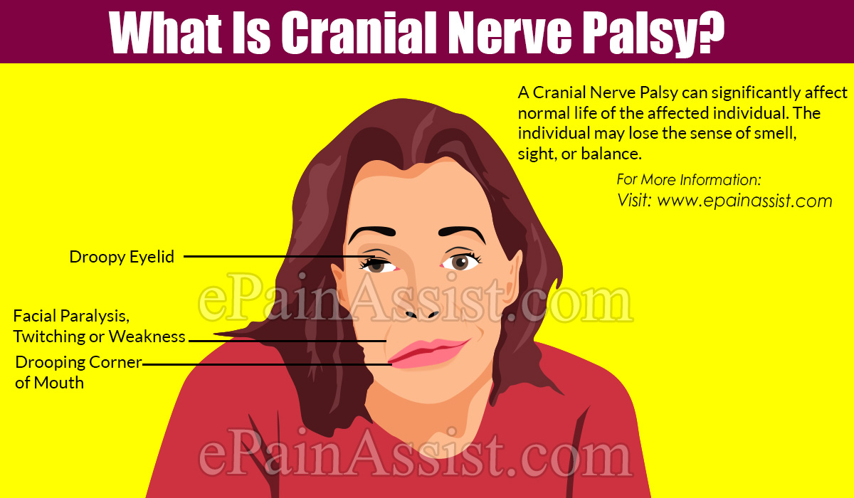 What Is Cranial Nerve Palsy?