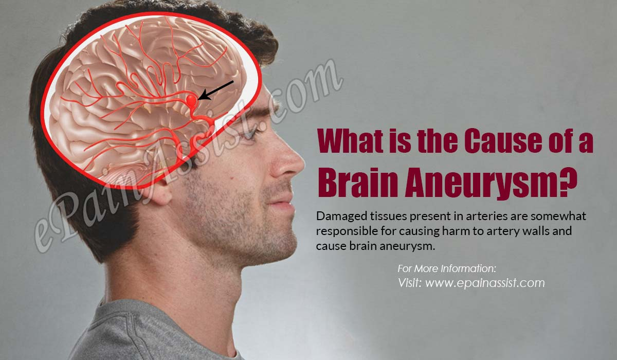 What is the Cause of a Brain Aneurysm?