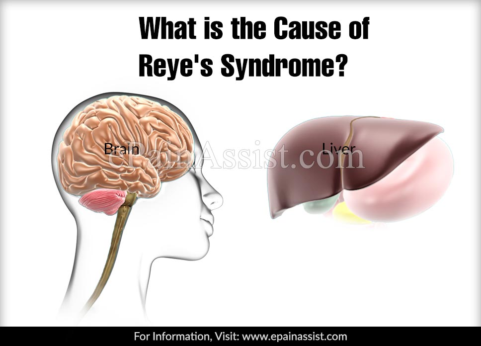 What is the Cause of Reye's Syndrome?
