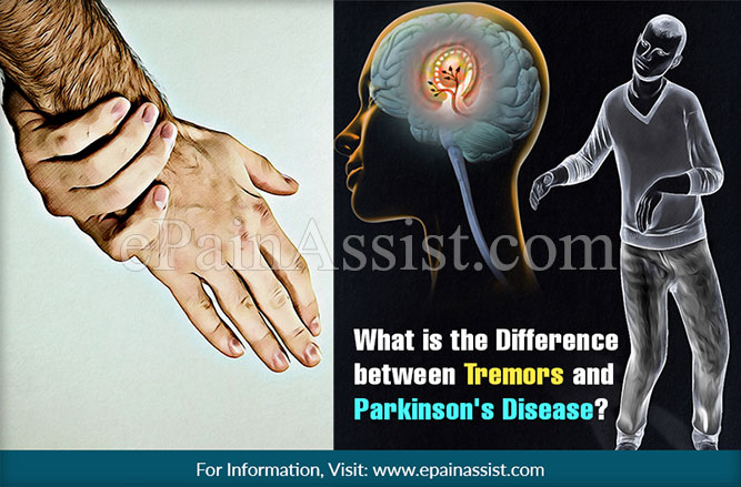 What is the Difference between Tremors and Parkinson's Disease?