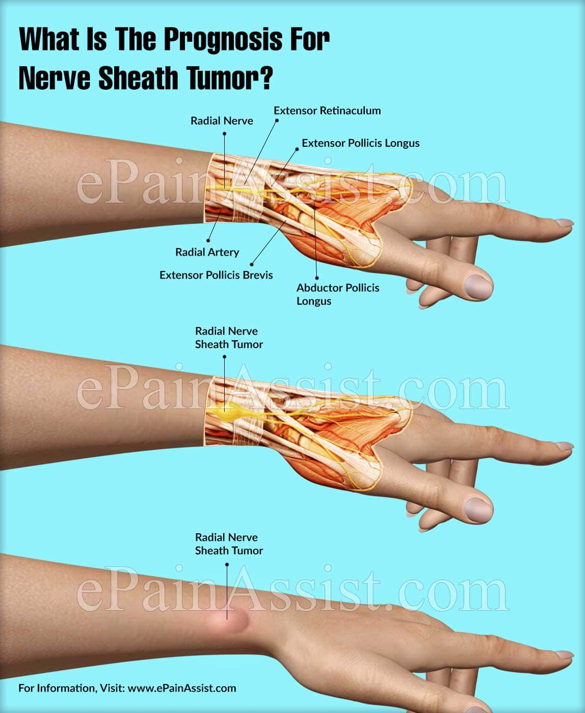 What Is The Prognosis For Nerve Sheath Tumor?