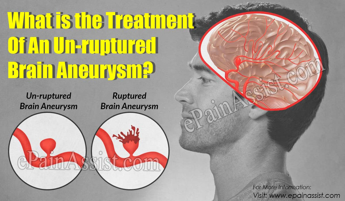 What is the Treatment Of An Un-ruptured Brain Aneurysm?