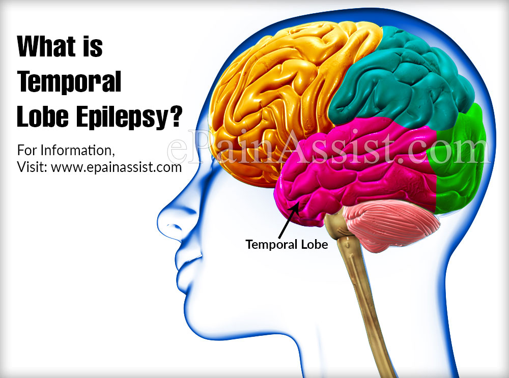 What is Temporal Lobe Epilepsy?