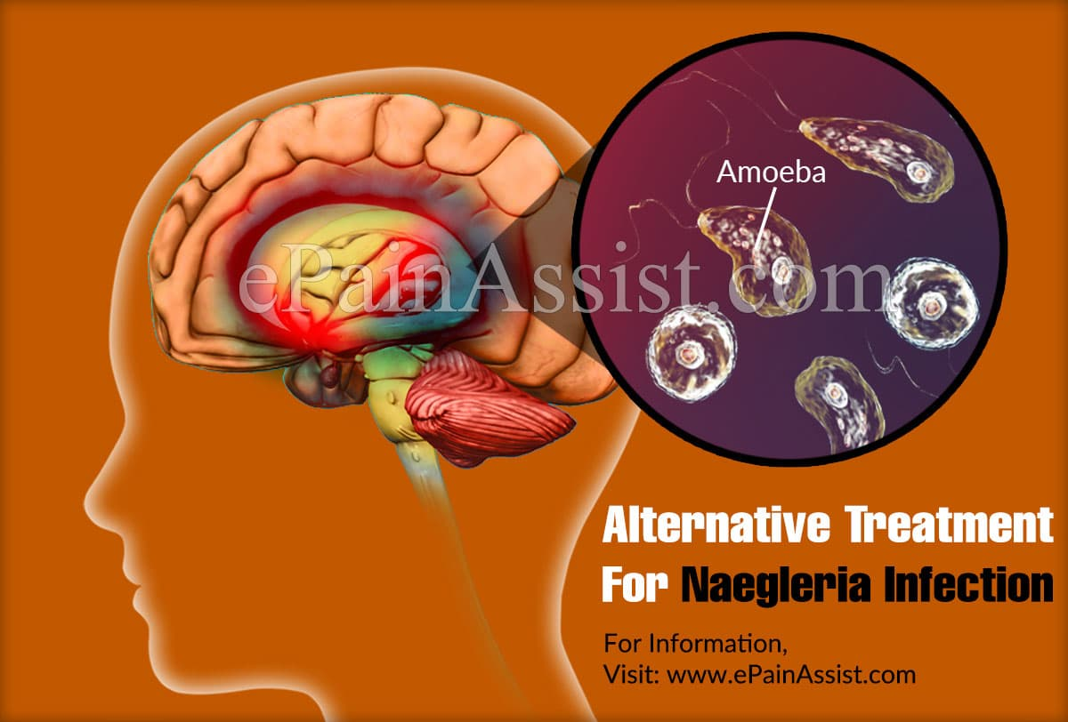 Alternative Treatment For Naegleria Infection