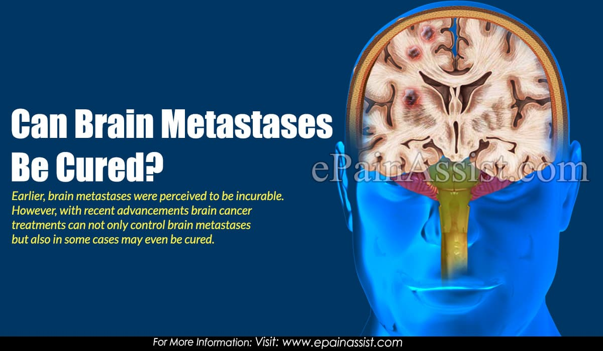 Can Brain Metastases Be Cured?