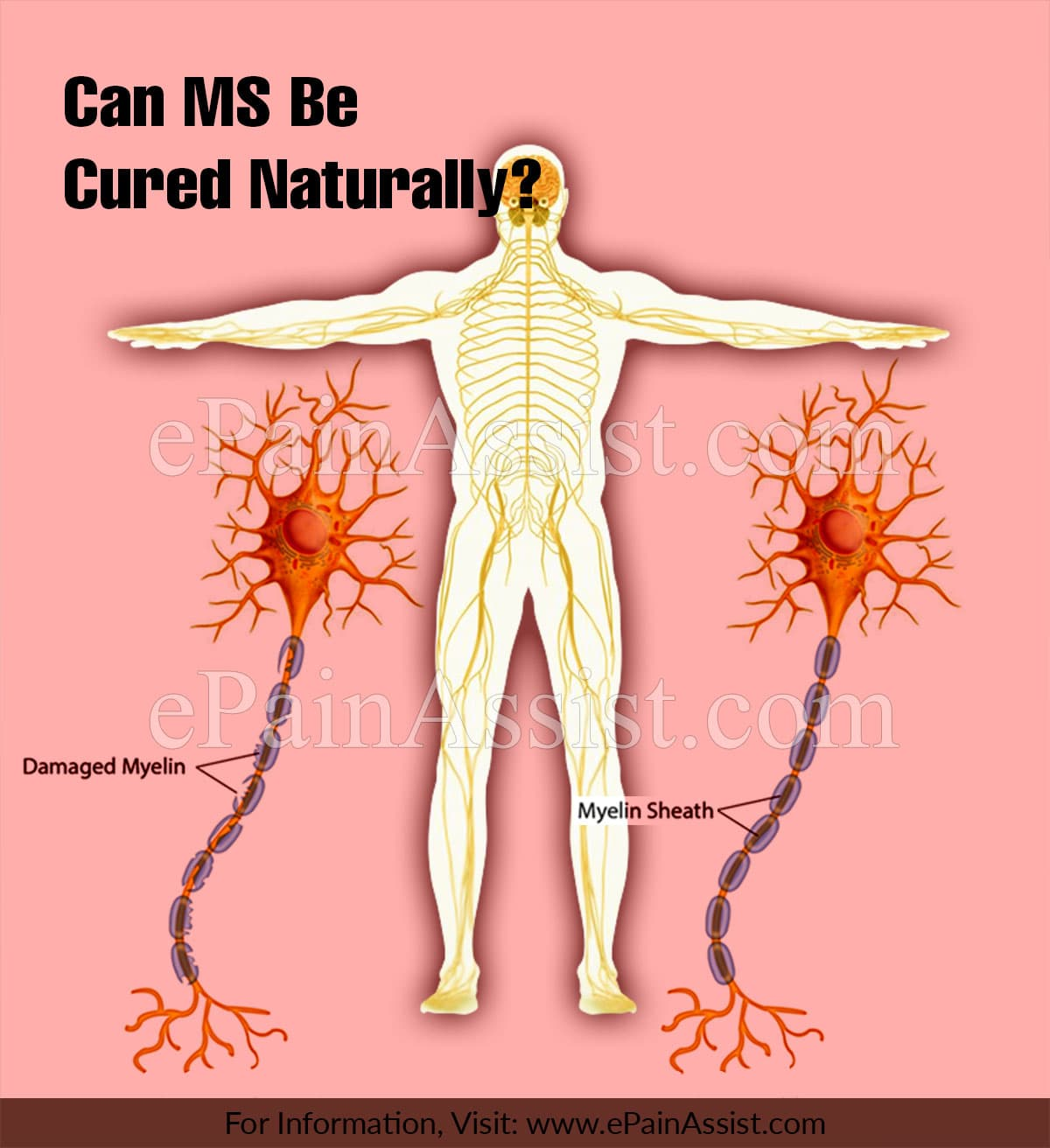 Can MS Be Cured Naturally?