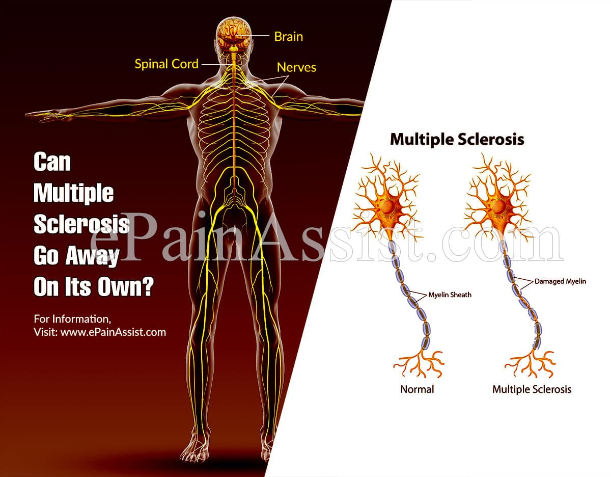 Can Multiple Sclerosis Go Away On Its Own?