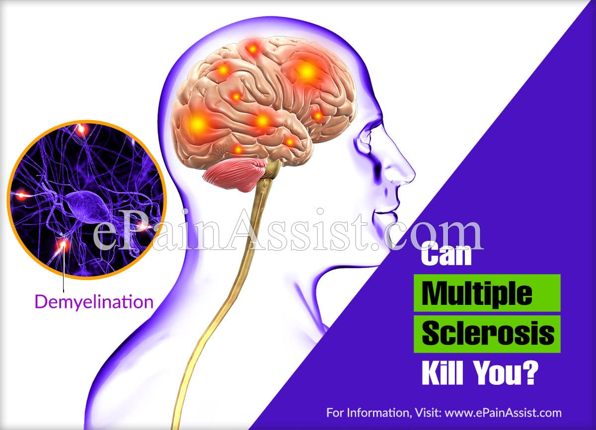 Can Multiple Sclerosis Kill You?
