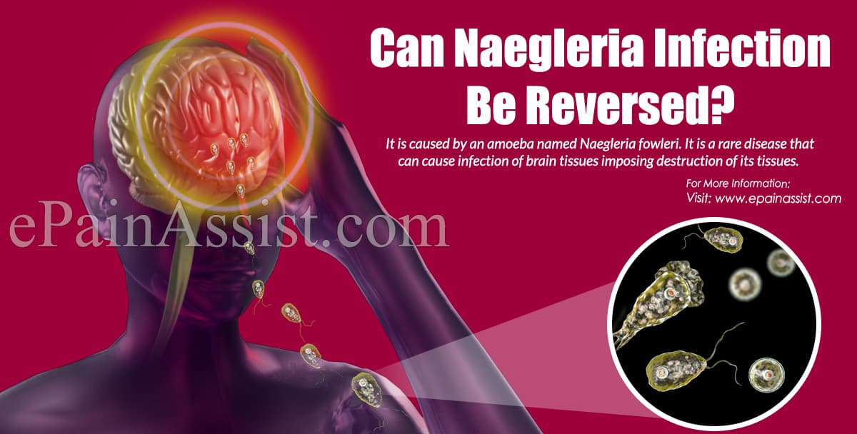 Can Naegleria infection Be Reversed?