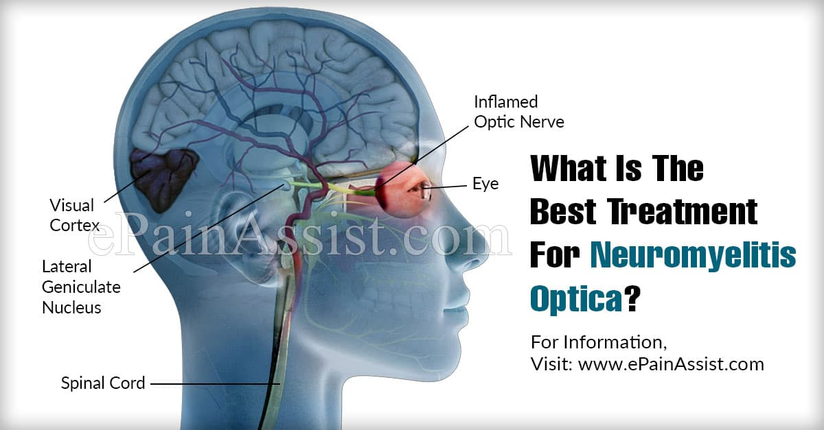 What Is The Best Treatment For Neuromyelitis Optica?