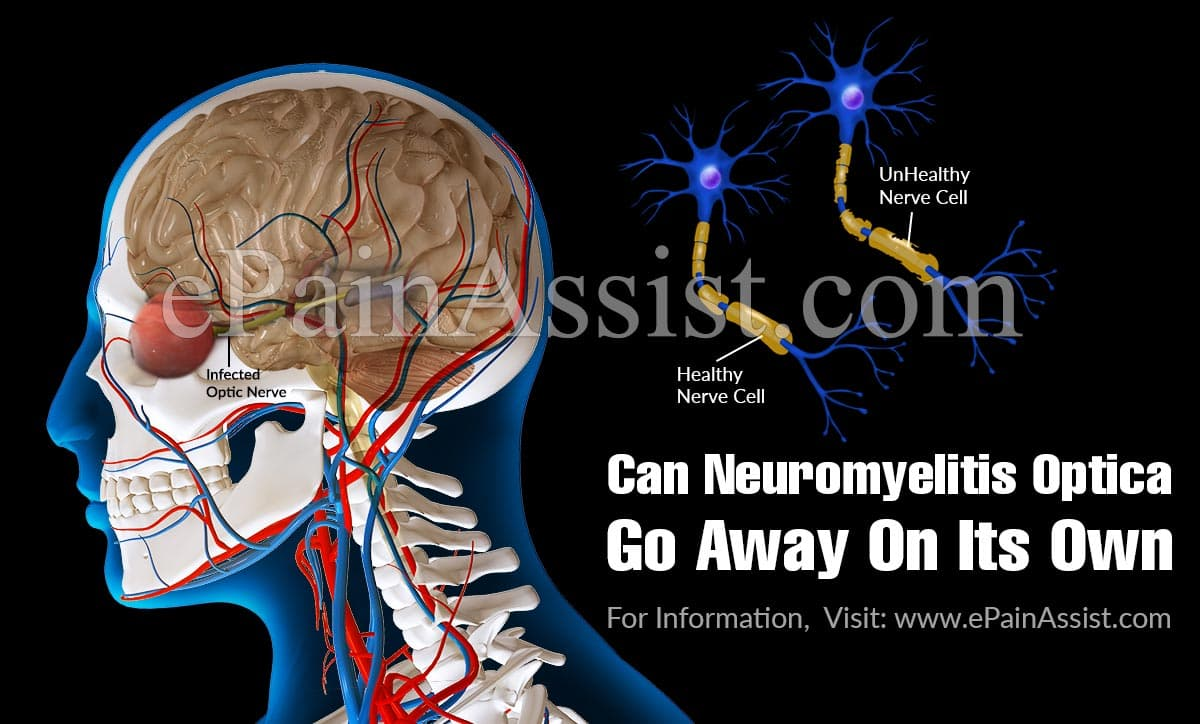 Can Neuromyelitis Optica Go Away On Its Own?