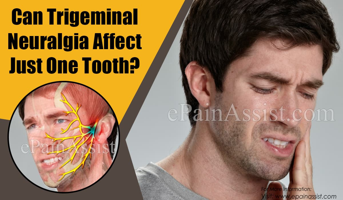 Can Trigeminal Neuralgia Affect Just One Tooth & Does It Cause Swelling?