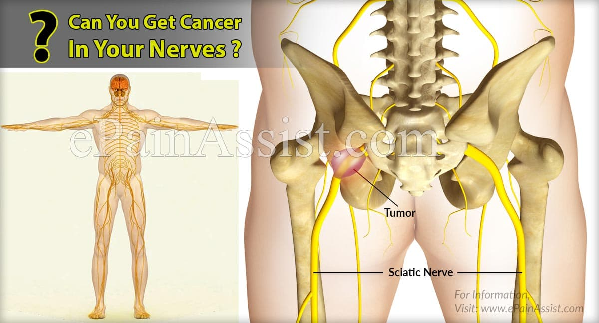 Can You Get Cancer In Your Nerves?