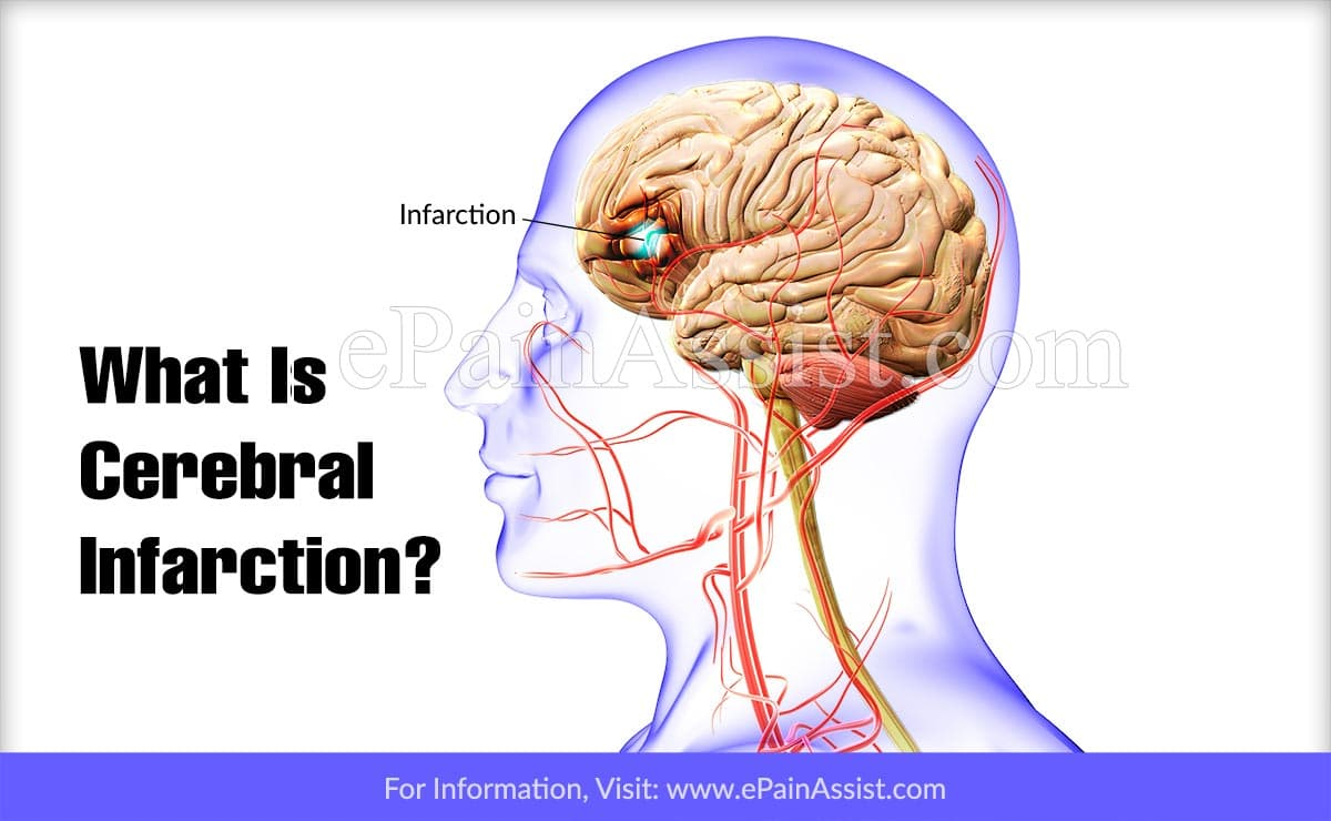 What Is Cerebral Infarction?