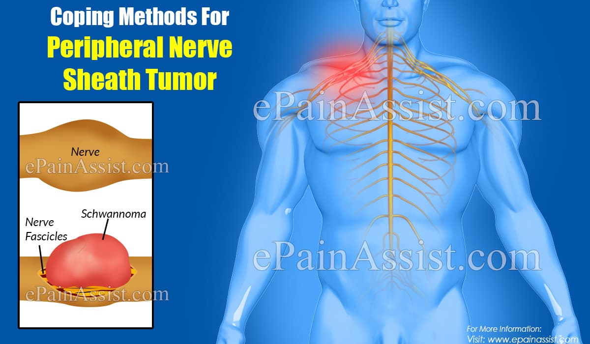 Coping Methods For Peripheral Nerve Sheath Tumor