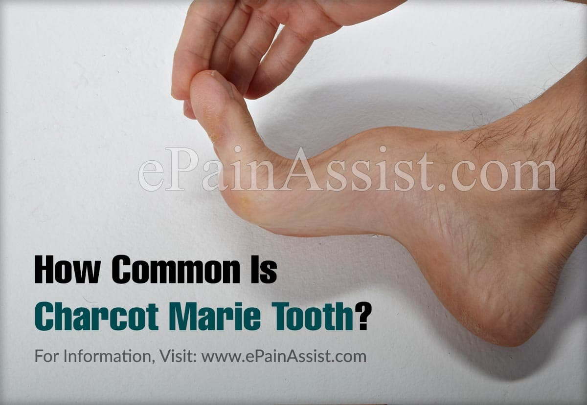 How Common Is Charcot Marie Tooth Or Is It A Rare Disease?