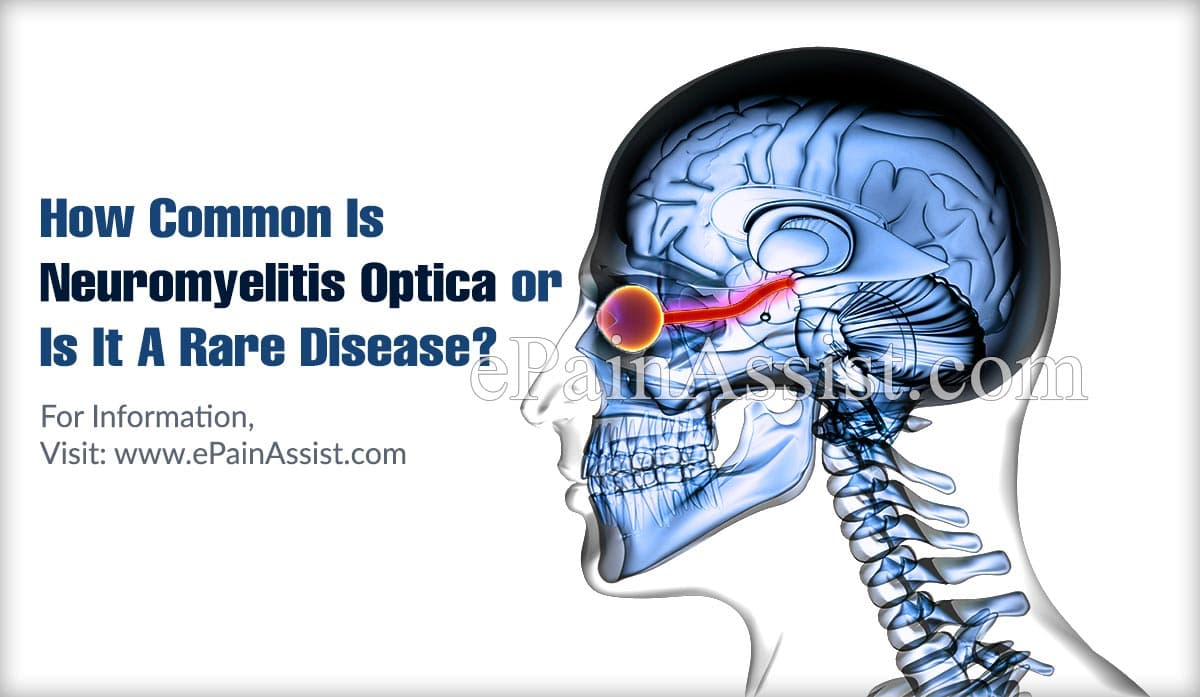 How Common Is Neuromyelitis Optica or Is It A Rare Disease?