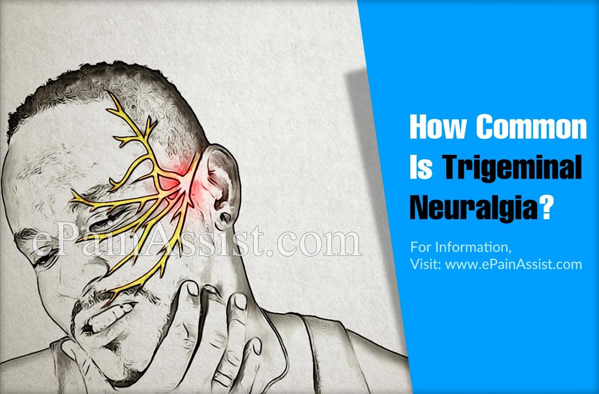 How Common Is Trigeminal Neuralgia Or Is It A Rare Disease?