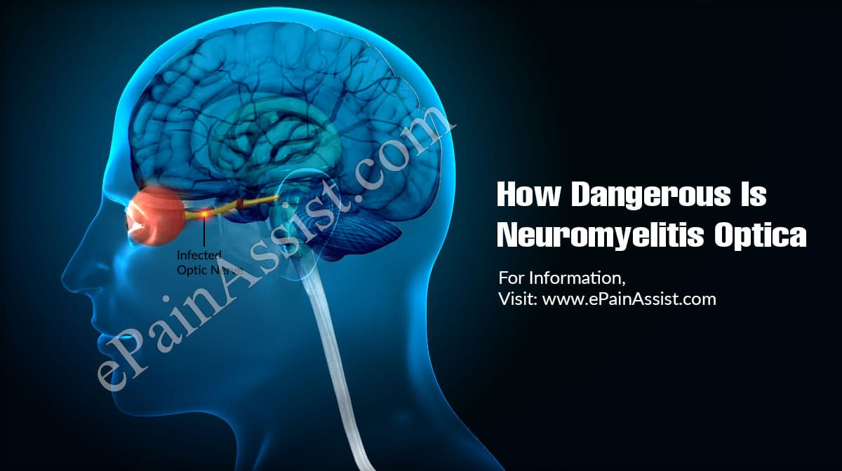 How Dangerous Is Neuromyelitis Optica & Is It Contagious?