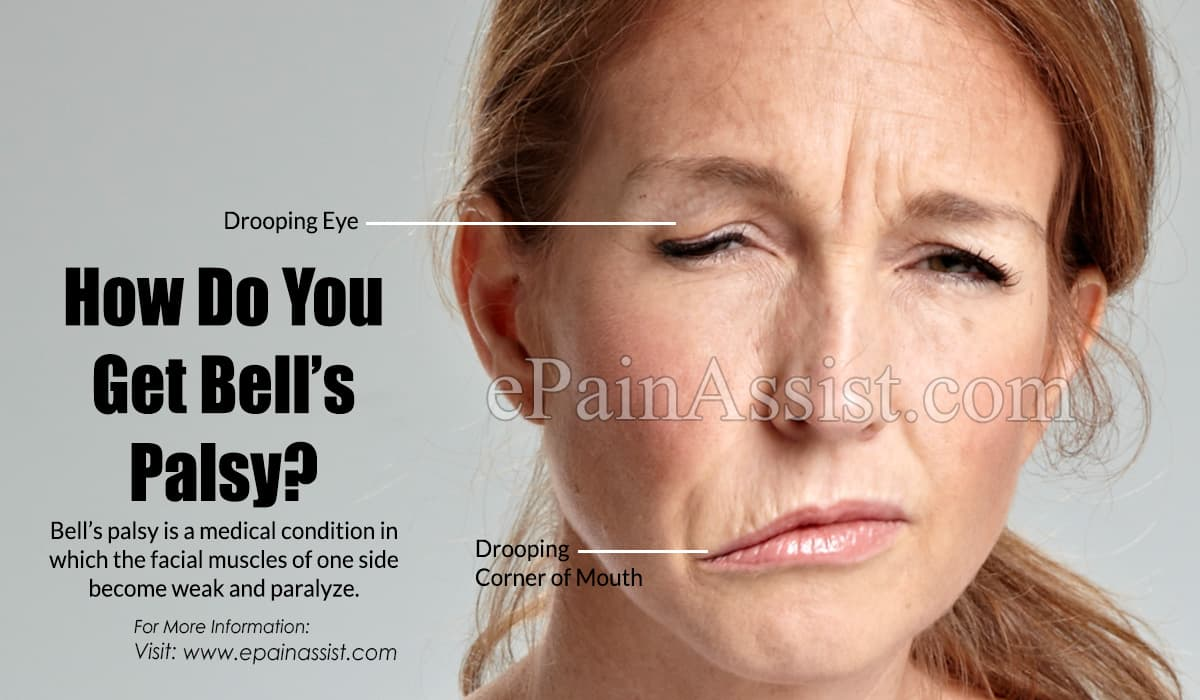 How Do You Get Bell's Palsy?