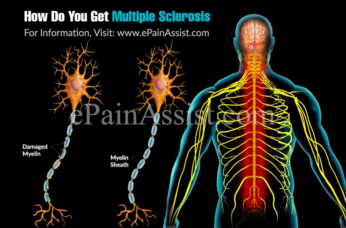 How Do You Get Multiple Sclerosis?