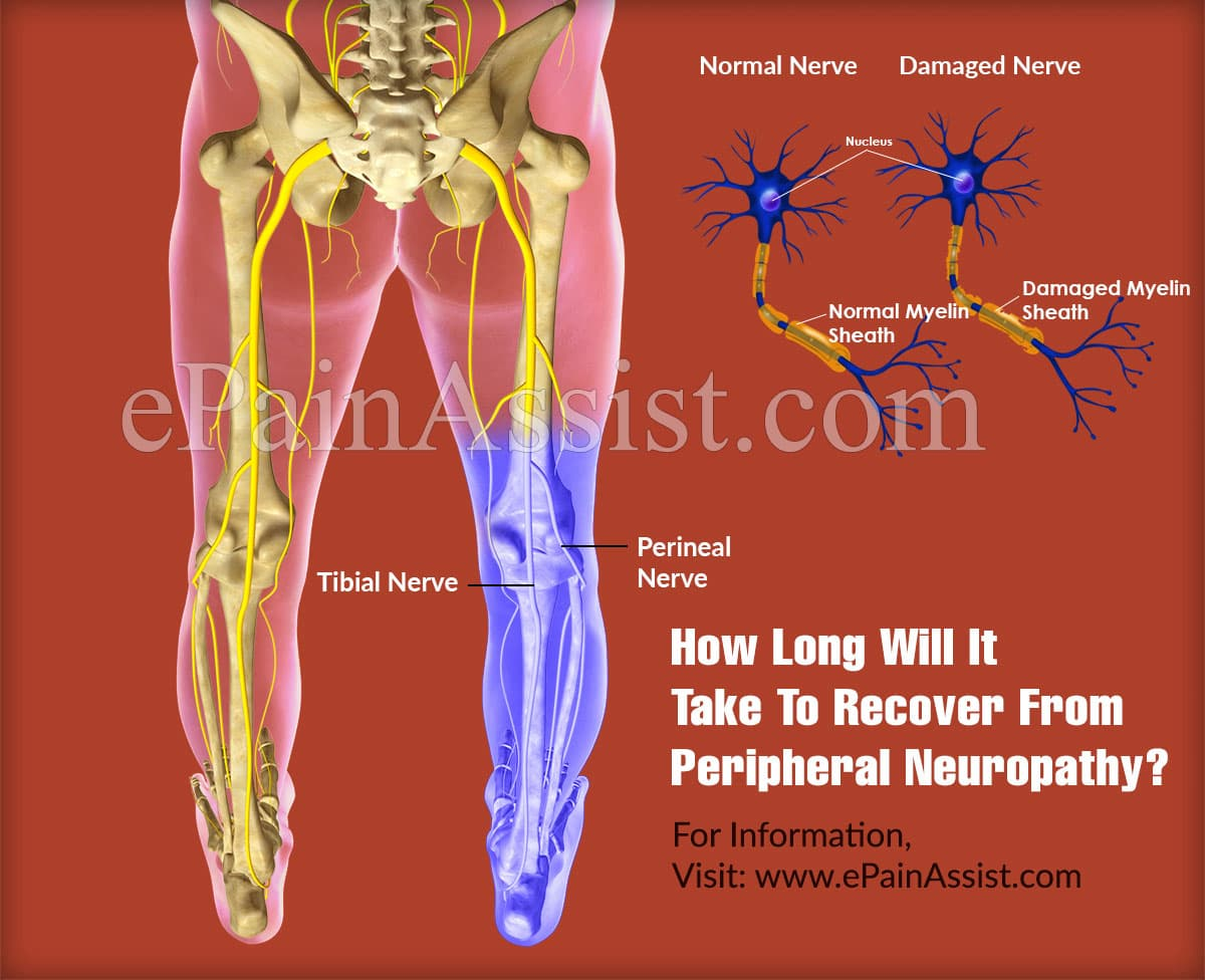 How Long Will It Take To Recover From Peripheral Neuropathy?