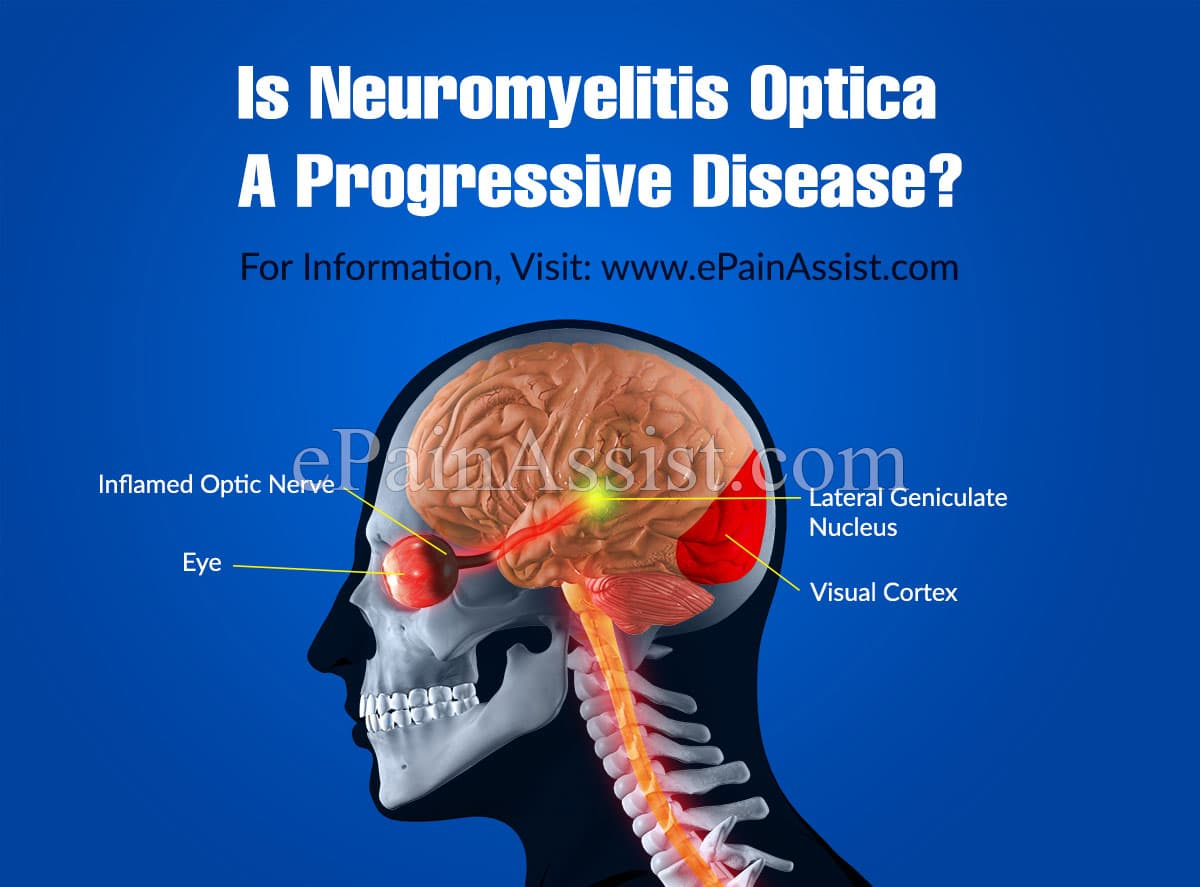 Is Neuromyelitis Optica A Progressive Disease?