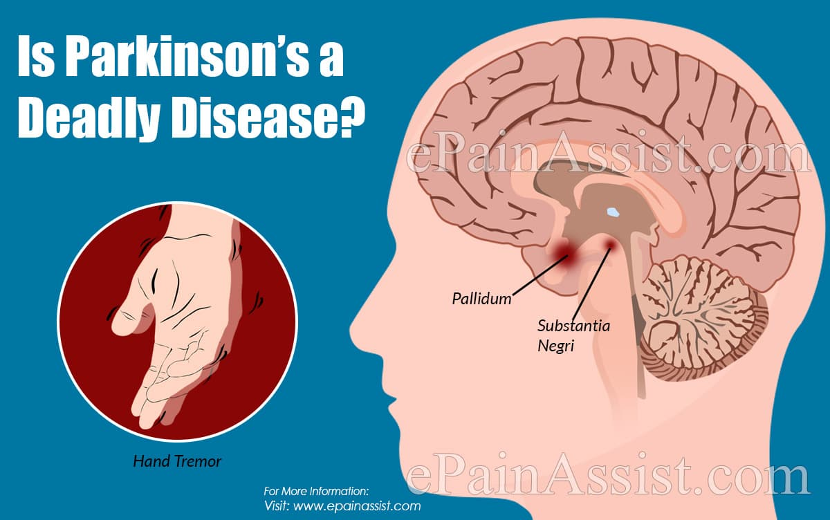 Is Parkinson's a Deadly Disease?