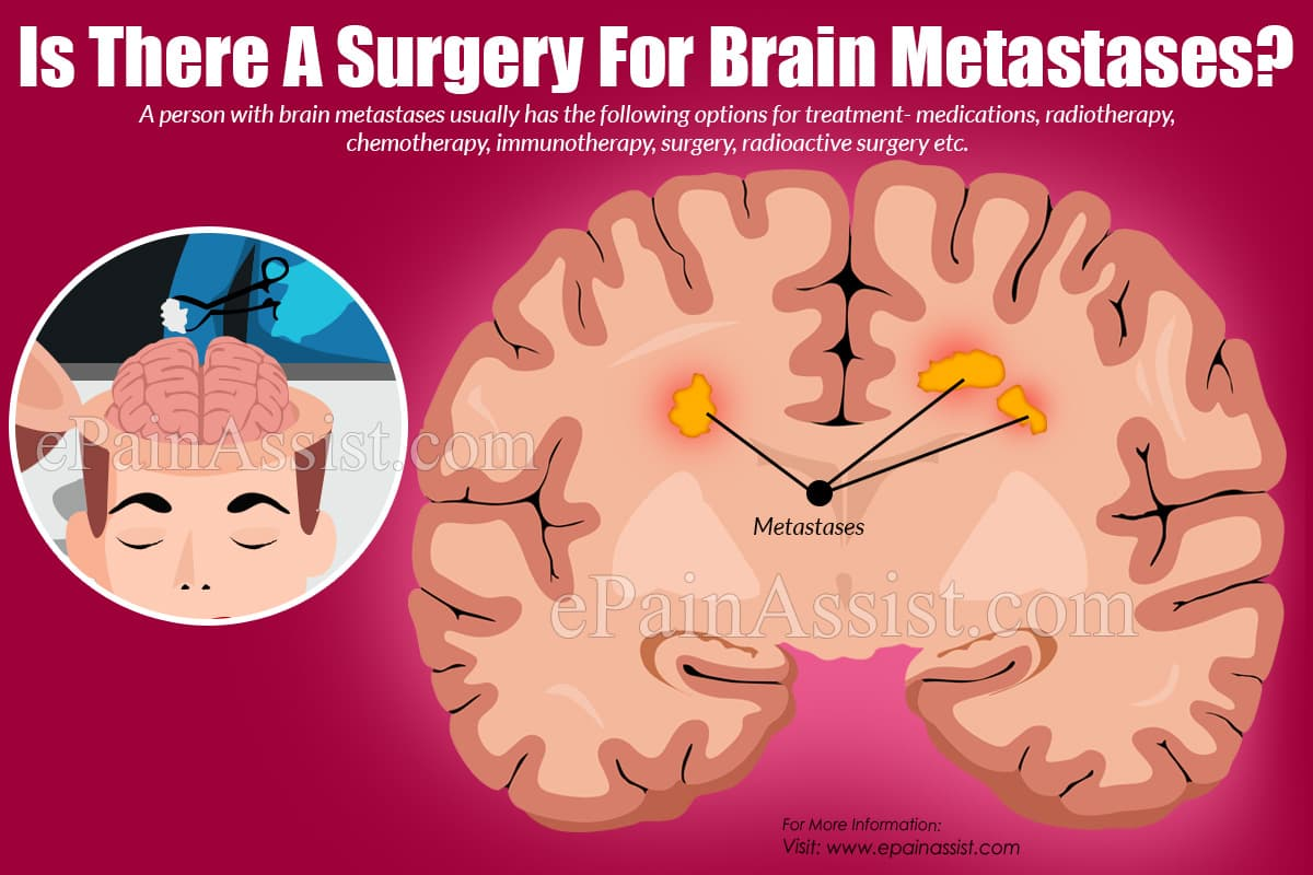 Is There A Surgery For Brain Metastases?