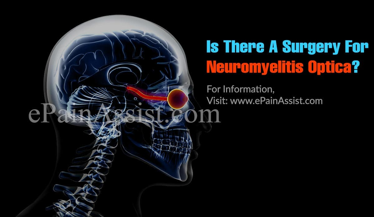 Is There A Surgery For Neuromyelitis Optica?