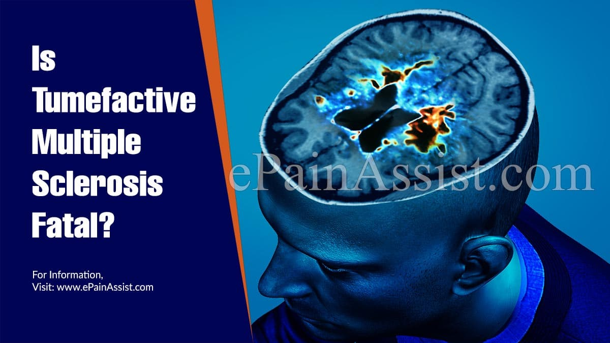 Is Tumefactive Multiple Sclerosis Fatal?