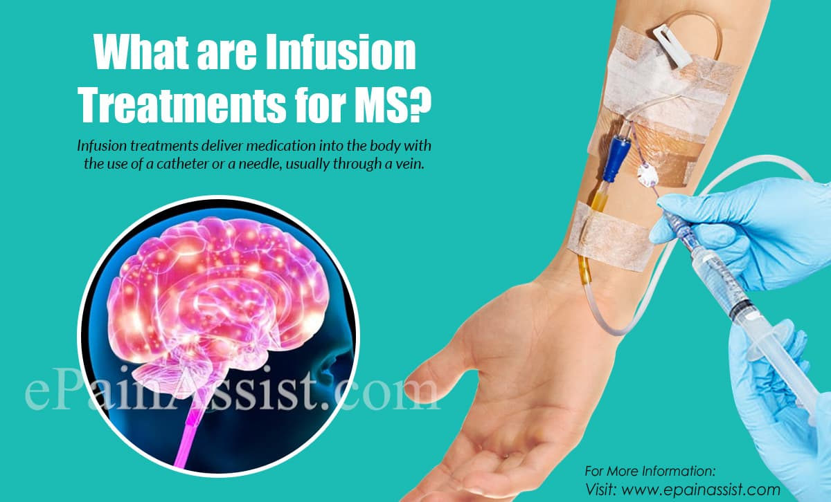 What are Infusion Treatments for MS?