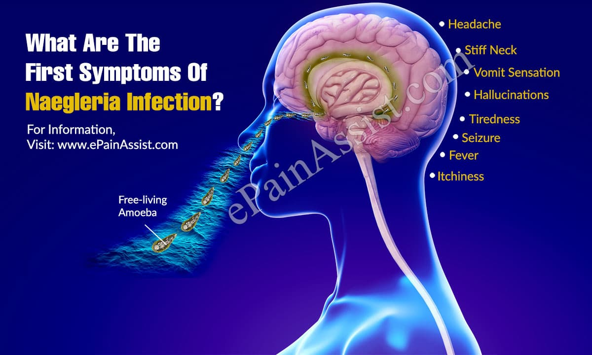 What Are The First Symptoms Of Naegleria Infection?