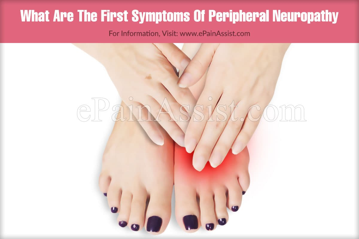 What Are The First Symptoms Of Peripheral Neuropathy?