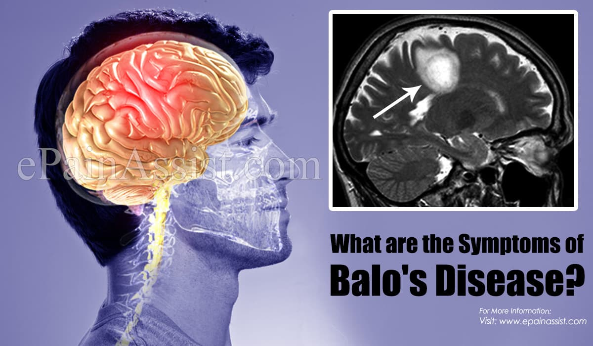 What are the Symptoms of Balo Disease?