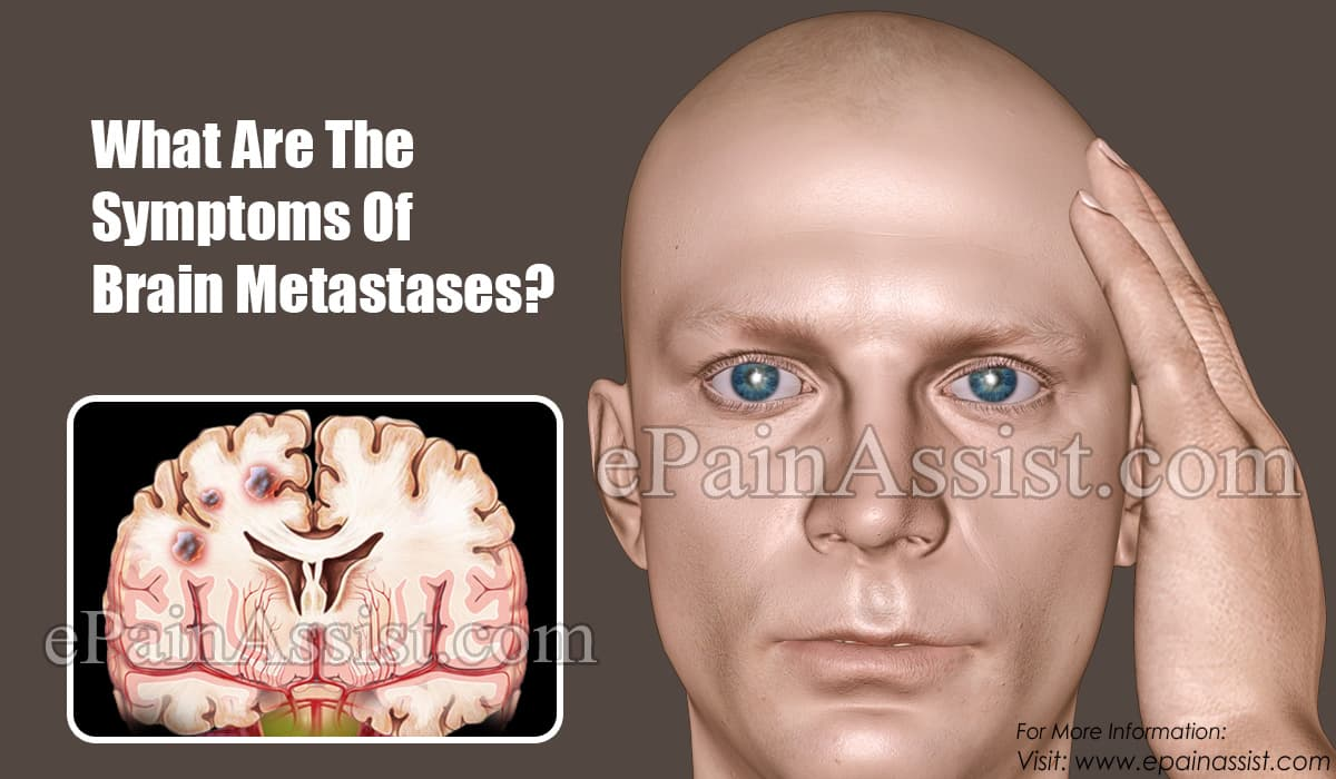 What Are The Symptoms Of Brain Metastases?